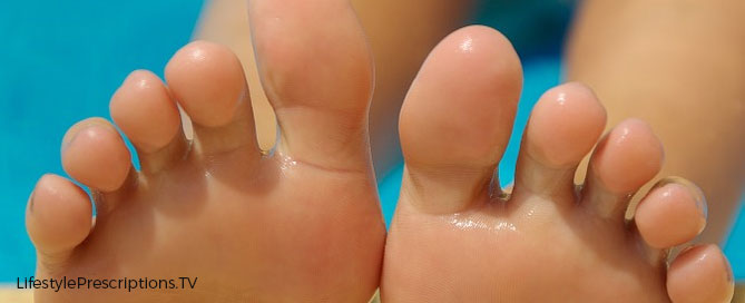 Lifestyle Prescriptions® for Athlete's Foot and Nail Fungus