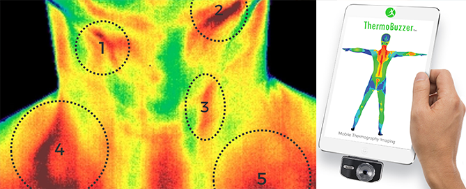 ThermoBuzzer Mobile Thermography – FAQ