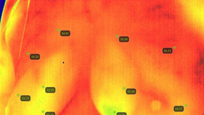 ThemoBuzzer Thermography Imaging with Lifestyle Prescriptions